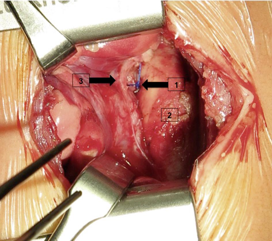 S2k-Leitlinie: Persistierender Ductus arteriosus im Kindes- und ...